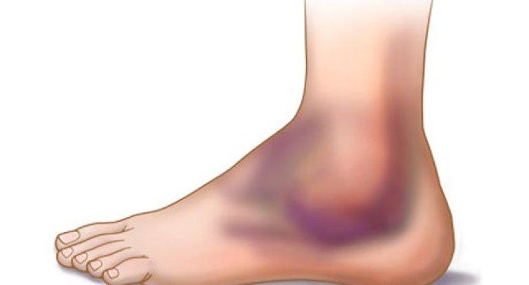 Лечим ушиб голеностопного сустава