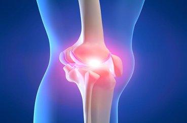 Что такое пателлофеморальный артроз колена?