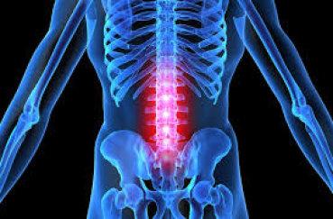 Лечим остеохондроз поясницы: симптомы, диагностика, действия при…