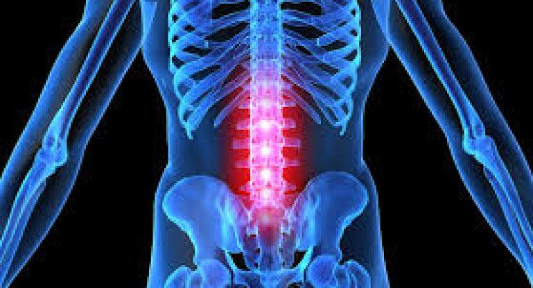 Лечим остеохондроз поясницы: симптомы, диагностика, действия при обострении