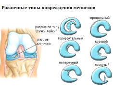 Различные типы повреждения