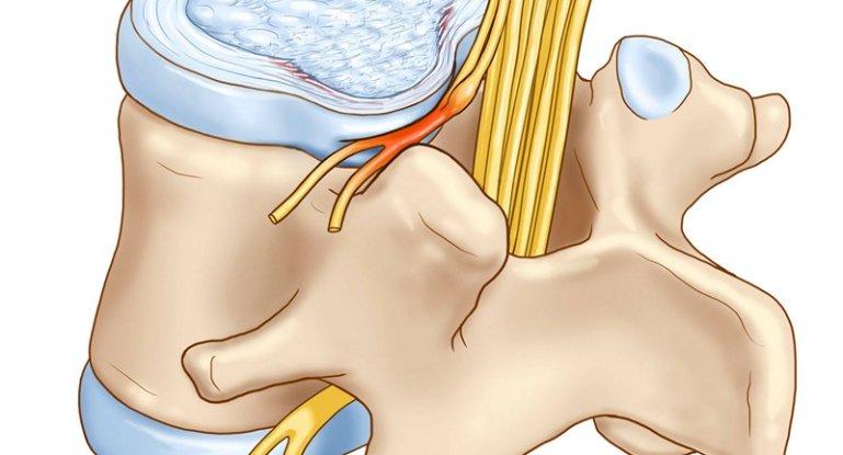 Как вылечить протрузию в грудном отделе позвоночника?