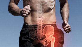 Специфика лечения синовита тазобедренного сустава