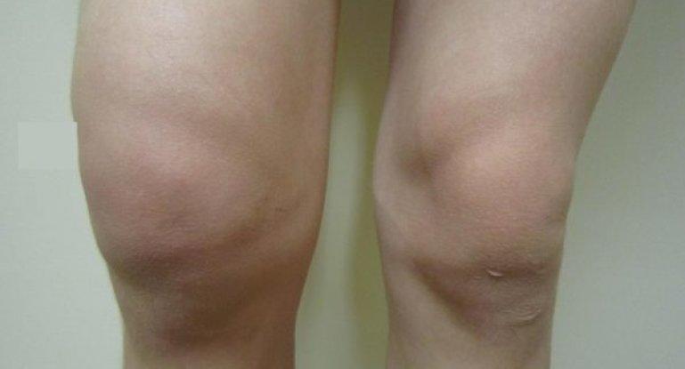 Почему отекает коленный сустав и как провести лечение?