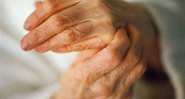 Могут ли дать инвалидность при артрозе?