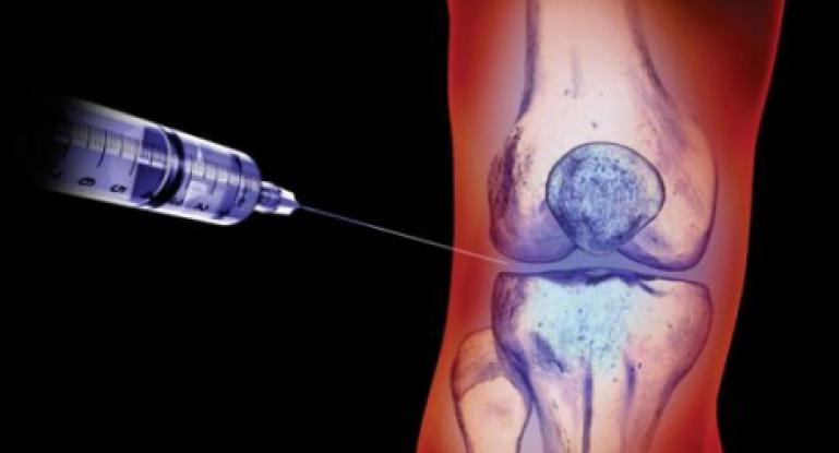 Лечение двухстороннего гонартроза разных степеней