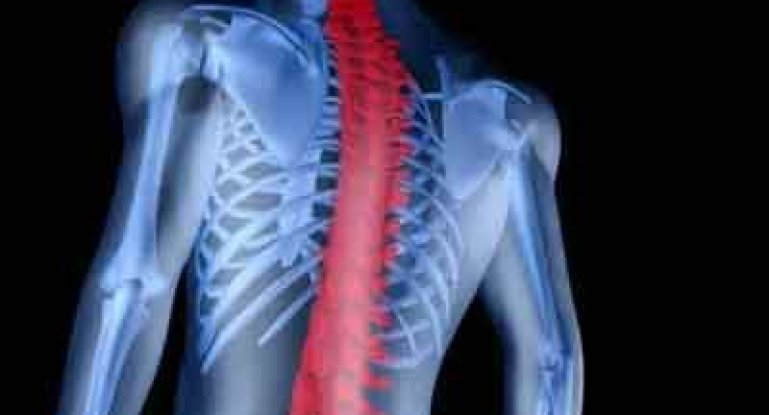 Что такое серонегативный спондилоартрит и как его лечить?