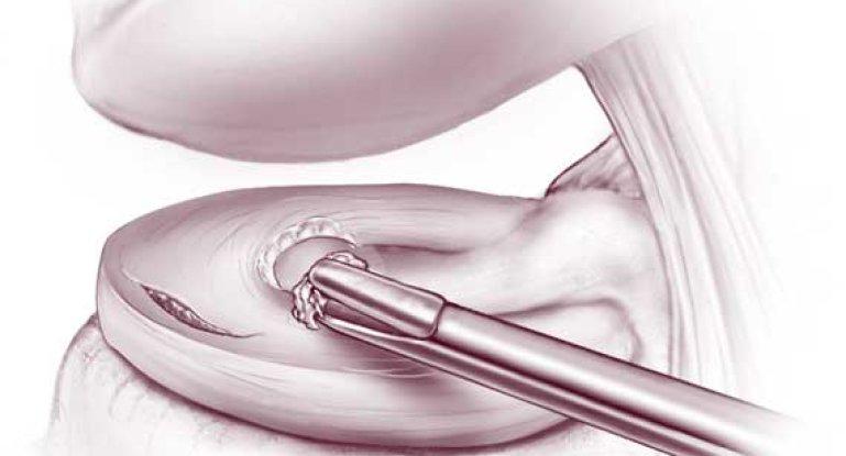 Резекция или частичное удаление мениска: ход операции и восстановление