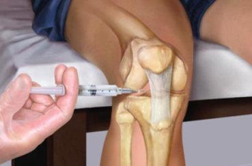 Медикаментозное лечение острого артрита
