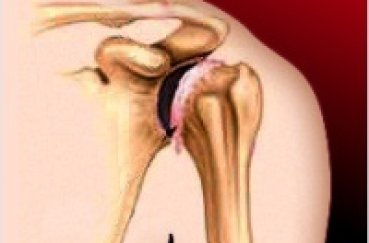 Защемление нерва плечевого сустава лечение в домашних условиях