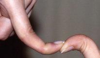 Что такое гипермобильность суставов