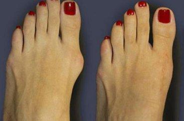 Почему появляется бурсит большого пальца стопы, и как его лечить?