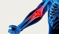 Какие симптомы и лечение при артрозе…