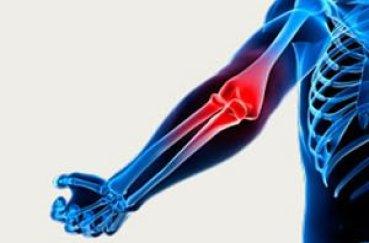 Какие симптомы и лечение при артрозе локтевого сустава?