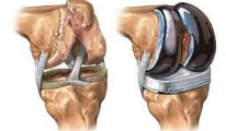Как проходит операция по замене коленного…