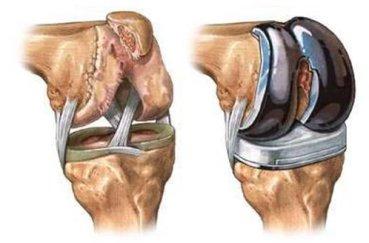 Как проходит операция по замене коленного сустава имея квоту?