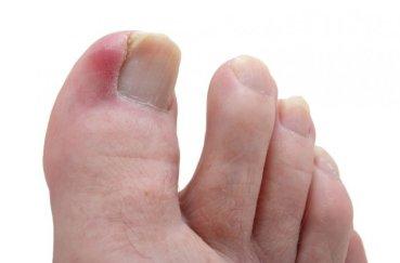 Как снять воспаление большого пальца ноги в домашних условиях?
