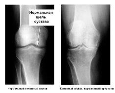 Снимок сустава пораженного болезнью