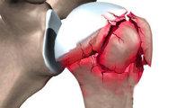 Лечение перелома плеча