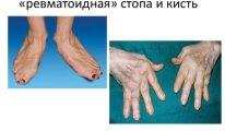 Особенности ревматоидного артрита и методы…