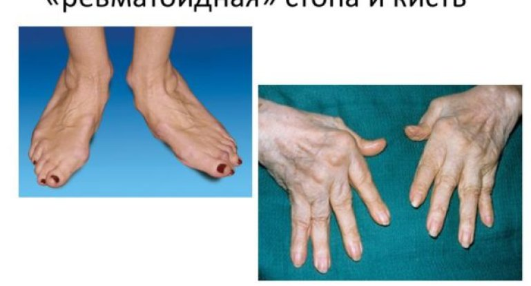 Особенности ревматоидного артрита и методы его лечения
