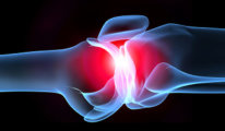 Что такое инфекционный артрит: симптомы,…
