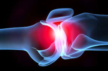 Что такое инфекционный артрит: симптомы, лечение