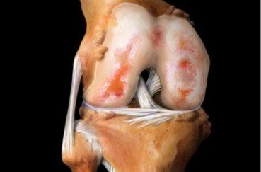 Что нужно знать о лечении такого заболевания, как артроз?