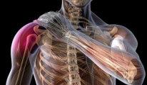 Все самое важное о плексите плечевого…