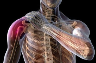Все самое важное о плексите плечевого сустава