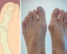 Артроз пальцев ног - симптомы и первые признаки. Методы эффективного лечения артроза пальцев