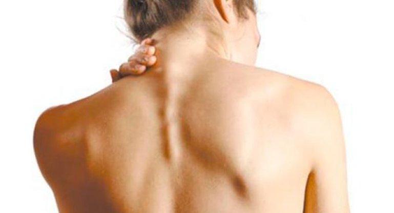 Как лечить остеохондроз шейного отдела позвоночника народными методами и рецептами?
