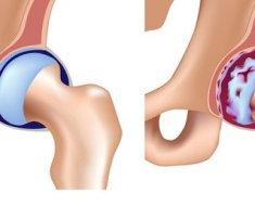 Больной артрозом тазбедренный сустав