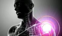 Как вылечить боли в плечевом суставе…