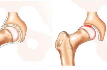 Как лечить сустав: симптомы и первая помощь при вывихе