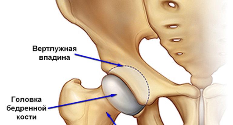 Как разработать тазобедренный сустав после перелома?