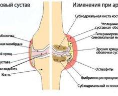Основные изменения при артрите