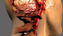 Как вылечить шейную мигрень при…