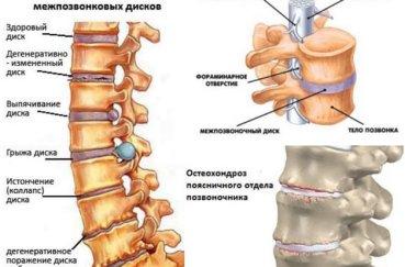 Чем опасен для человека шейный остеохондроз?
