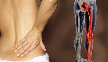 Что делать, если появилась боль в спине и она отдает в ногу
