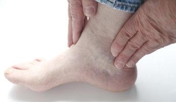Как лечить воспаления голеностопа в домашних условиях?