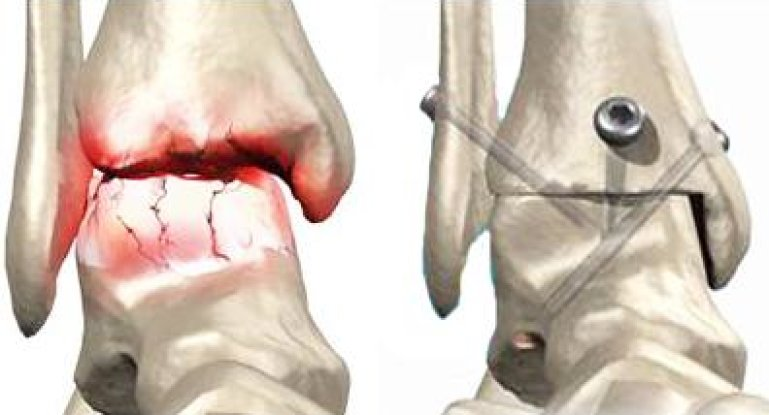 Что такое артродез и как реабилитироваться после операции