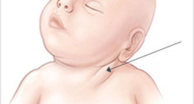 Что делать, если обнаружили кривошею у новорожденных?