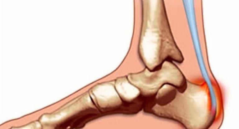Что такое бурсит пятки и как его лечить?