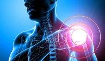 Что такое капсулит плечевого сустава и как…