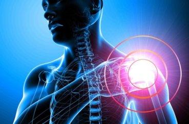 Что такое капсулит плечевого сустава и как его лечить