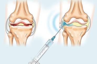 Инъекции гиалуроновой кислотой и аналоги для лечения суставов