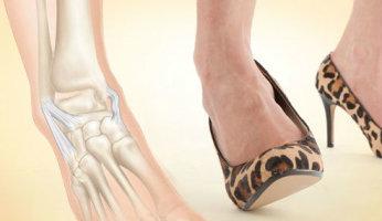 Связки: что делать при их повреждении и болезнях?