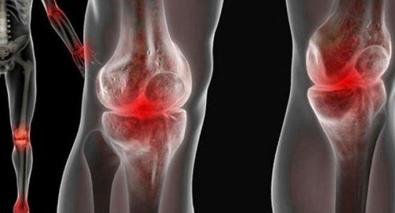 Изображение - После простуды болят суставы 8881f4d2c32aa97_769x415