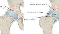Как лечить остеохондроз коленного и…